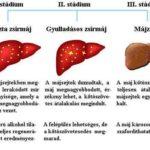 Zsírmáj a felesleges zsír egy része a májsejtekben rakódik le